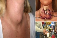 The thyroid is a butterfly shaped gland that is located at the base of the neck and it is very essential for the proper metabolic functions in the body. The gland produces thyroxine that is a hormo… Genital Herpes, Thyroid Gland, Thyroid Health, Thyroid Cure, Thyroid Issues, Thyroid Problems, Natural Cures, Natural Health, Canning Recipes