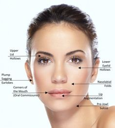Dermal fillers are not just for nasolabial folds and lips.  Check out these off-label applications.