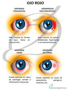OJO ROJO El síndrome de ojo rojo incluye un grupo de enfermedades que provocan inflamación ocular y por tanto enrojecimiento del mismo, las principales enfermedades de este grupo son: -Conjuntivitis -Blefaritis -Otras: inflamaciones intraoculares (uveítis), escleritis, pterigium (carnosidad que crece hacia el centro de la córnea), etc.