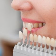 Obtain Perfect Smile With Cosmetic Dentistry Procedures #smilemore #oralcare #cosmetic #dentisty