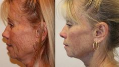 No More Lines And Folds And Drooping Face If You Apply Facial Training Exercises