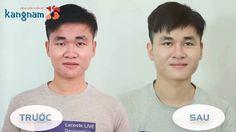 Phẫu thuật Nâng mũi cho NAM giới đẹp chuẩn Hàn Quốc. Xem chi tiết: https://www.youtube.com/watch?v=cxGtQspKSH0