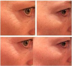 Rodan + Fields Acute Care filler her crows feet. Email me if you need wrinkled filled.  Agesmartskincare@gmail.com