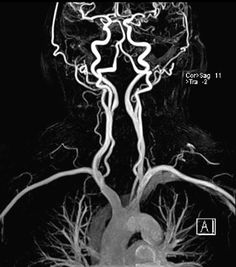 Blood Flow Through the Brain, pt. 2 (The Ride to the Top) - head and neck vasculature (MRI)