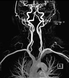 Brain Anatomy, Medical Anatomy, Anatomy Art, Anatomy And Physiology, Human Anatomy, Brain Neurons, Mri Brain, Brain Art, Medical Art