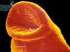 Scanning electron micrograph of the mouth of an adult male Schistosoma mansoni, a parasitic freshwater flatworm that causes schistosomiasis. Also called bilharzia or bilharziosis, this chronic debilitating disease can damage the intestines,liver, and urinary tract. (c) Alain Pol © ISM / Phototake