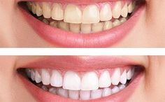 Dental bleaching can help with discoloration or yellowing.