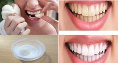 Guaranteed Teeth Whitening In Less Than 2 Minutes! – 1K Recipes!