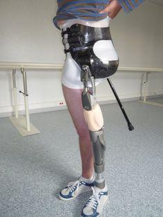 Prothèse de hanche | Bagnarosa Orthèses Prothèses Technologies