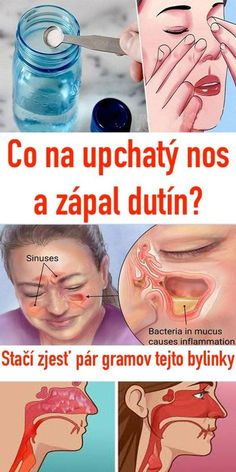 Čo na upchatý nos a zápal dutín? Stačí zjesť pár gramov tejto bylinky Diarrhea Remedies, Home Treatment, Natural Health, Natural Remedies, Healthy Snacks, Detox, Health Fitness, Breast, Guacamole