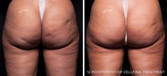 Cellfina Cellulite Treatment | Fat Reduction Baltimore MD