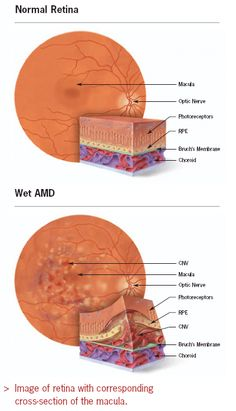Facts About Age-Related Macular Degeneration from the National Eye Institute to . - Facts About Age-Related Macular Degeneration from the National Eye Institute to help patients and t - Test Visual, Eye Anatomy, Eye Facts, Eye Infections, Eyes Problems, Health Problems, Healthy Eyes, Eye Doctor, Eyes