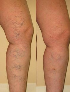 Another surprise benefit.  Want to hide those ugly spider veins? Use Nerium firm!!! Go to my website dreamqueen4.nerium.com