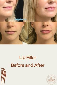 See real results from lip filler before and after.
