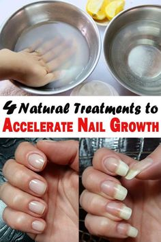 Our nails grow with about 3 mm per month. Nails grow faster in summer, or during pregnancy. 4 Natural Treatments to Accelerate Nail Growth - Kimberly LeBron-Smith - Do you wish your nails would grow faster? Here's what you can do to accelerate nail growth Make Nails Grow, Grow Nails Faster, Grow Long Nails, Nail Growth Tips, Fast Nail Growth, Ongles Forts, Nail Soak, Strong Nails, Nail Treatment