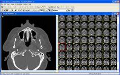 3D-DOCTOR, medical modeling, 3D medical imaging, Tutorial