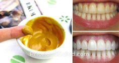 Muchas personas sufren de dolor de muelas severo, irritación de las encías, dientes frágiles o translúcidos o aumento de la sensibilidad.\r\n\r\n[ad]\r\nEstos malestares son causados por desgastar el esmalte de la dentadura debido a:\r\n- Consumo de bebidas y alimentos ácidos\r\n- Usar un cepillo muy duro o cepillar agresivamente\r\n- A causa de enfermedades como la bulimia y la anorexia\r\n- Mala higiene bucal\r\n\r\n\r\nPero gracias a esta sencilla receta, despídete de estas molestias al…