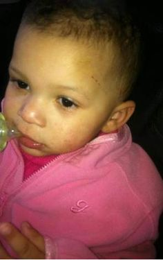 18 month old Somara Smith: She was abused and beaten to death by her mother's boyfriend.  http://helpspreadthis.org/notjuststatistics/3wizrvnir3hy1y7g6lwsnhk23kl4h8