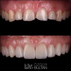 You can see the attrition of incisors due to malocclusion. Before all restorative procedures patient had orthodontic treatment to obtain ideal overjet and overbite. Crown lengthening operation was made by @drfatihvural in order to align the gingival levels. After 2 weeks of home bleaching 10 IPS e.max laminate veneers were placed... Thanks to Cdt. @sibelkucukel for lab work... Üst çene keser dişlerde başbaşa kapanışa bağlı olarak aşınma görülmektedir. Tüm restoratif işlemlerden önce ön… Teeth Shape, Root Canal Treatment, Orthodontics, Dentistry, Restoration, Shapes, Canning, Health, Photos
