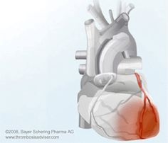 An area of cardiac muscle damage caused by acute occlusion in a coronary artery that delivers blood to that area.