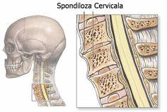 Un articol de Cristian Iacov  Spondiloza cervicala, cunoscuta si sub numele de osteoartrita, este o conditie de sanatate prezenta la foarte multe persoane, ea afectand articulatiile de la nivelul gatului. Spondiloza apare din cauza uzurii cartilajelor, tesuturilor si oaselor cervicale. Aceste modi