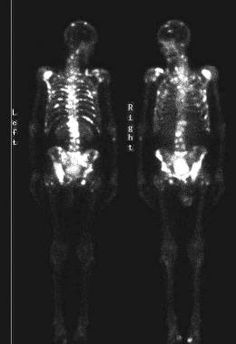 Guidelines for bone scan in prostate cancer