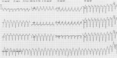 Definition, mechanism, and clinical significance of ventricular tachycardia (VT). Typical ECG findings with examples of monomorphic VT Brugada Syndrome, Sinoatrial Node, Bundle Branch Block, Ekg Interpretation, Ventricular Tachycardia, P Wave, Acute Care, Education