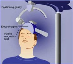 The Future of Pain Relief in Fibromyalgia (and ME/CFS)
