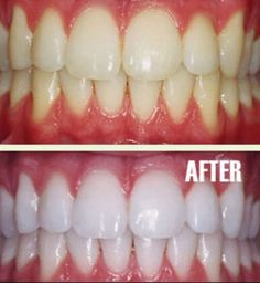 BEST Teeth Whitening Homemade Product Works Wonders! Make your teeth snow white in 2 weeks! Put a tiny bit of your favorite toothpaste into a small cup (I use Crest Pro-Health Clinical Plaque Control), mix in 1 teaspoon baking  soda + 1 teaspoon hydrogen peroxide & ½ teaspoon water. Mix well then brush your #teeth for 2 minutes. Do it once a week until you have reached the results you want. Once your teeth are whitened, limit yourself to using the #whitening treatment once every 1-2 months.
