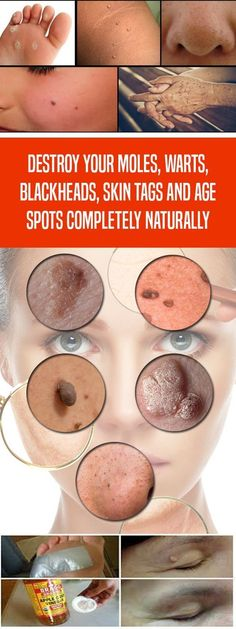 Destroy your Moles, Warts, Blackheads, Skin Tags and Age Spots Completely Naturally - Skinnyan