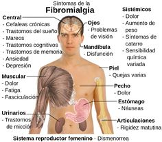 La fibromialgia es una afección de lento pero sostenido crecimiento que puede comprometer en gran medida las actividades de tu vida diaria. El magnesio que cumple numerosas funciones en el organismo puede ayudarte a mitigar sus efectos. Descubre cómo se relaciona con la fibromialgia.