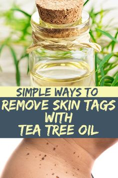 Simple Ways to Remove Skin Tags With Tea Tree Oil Natural Sleep Remedies, Natural Health Remedies, Natural Cures, Herbal Remedies, Home Remedies, Natural Healing, Bronchitis Remedies, Holistic Remedies, Natural Oils