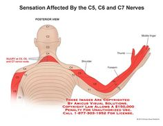 Sensation Affected by the and Nerves – Anatomy Exhibits Cervical Spinal Stenosis Symptoms, Cervical Spine Exercises, Massage Tips, Massage Therapy, Nerve Anatomy, Ear Reflexology, Radial Nerve, Radiculopathy, Massage