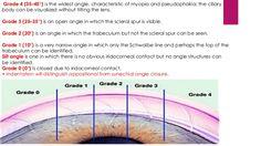 Image from http://image.slidesharecdn.com/gonioscopyandopticnerveheadevaluation-151018223403-lva1-app6892/95/gonioscopy-and-optic-nerve-head-evaluation-17-638.jpg?cb=1445207774.