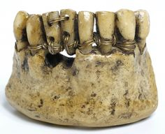 Etruscan teeth, around 2000 years old.