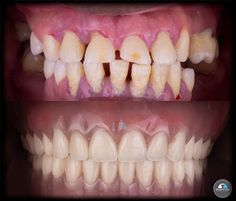 Can you believe that they are dentures? Look at this final denture case, our patient came to the clinic with bone loss, loose teeth and infection that could not be saved. Our dentist in Tijuana, DDS Ceila Flores and periodontist Miguel Ramirez did multiple extractions and temporary dentures. We help him changed his appearance. He looks incredible and also have functional teeth that will provide him a healthy life. Now he is able to eat properly and that's our goal. The next step in the… Loose Tooth, Bone Loss, Dentist In, He Is Able, Clinic, Healthy Life, Dental, Teeth, Goal