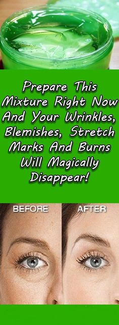 Stretch marks, wrinkles, blemishes and burns are common problems among people nowadays, especially women. They buy many different creams and try numerous treatments that can be extremely expensive only to help themselves, but they don't work. The ingredients contain many healing properties, but only a small number of people know that these two ingredients mixed together can do miracles for our skin. This amazing mixture is perfect for removing stretch marks very quickly. This mixture…
