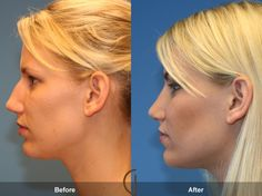 Newport Beach Teenage Rhinoplasty - The nose is the focal point of a person's face, and when a teen feels uncomfortable with their nose it can have a devastating effect on the person. A nose is a huge part of a first impression, and for teenagers, a large part of their social circles and peer groups depend on having self confidence and a positive body image.