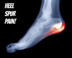 You can comfortably get rid of heel spurs using the best heel spur treatment. Read the post to explore on home, natural and pain treatment exercises to fix heel spurs and plantar fasciitis.