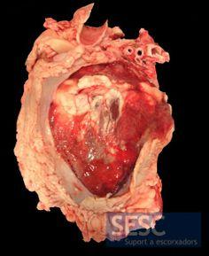 Pericarditis fibrinosa. Imagen del pericardio seccionado.