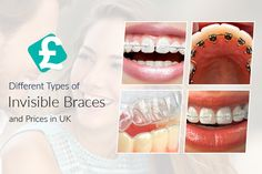 Know about the different types of #orthodontics Invisible #Brace and their prices in United Kingdom