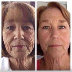 Face aerobics: A facelift without surgery should be practiced using facial yoga workouts. Face exercises easily inhibit and fade wrinkles and firm up saggy, wrinkled face skin Nu Skin, Face Skin, Sagging Face, Facelift Without Surgery, Natural Face Lift, Facial Yoga, Facial Massage, Anti Aging Night Cream, Face Exercises