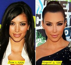 Kim Kardashian Plastic Surgery Before and After Nose Job, Botox and Facelift - Star Plastic Surgery Before and After