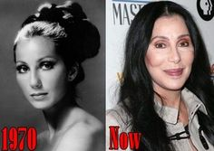 Image result for cher before and after plastic surgery