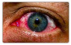 Μωσαϊκό: Άνοιξη και οφθαλμικές αλλεργίες
