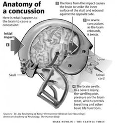 Could this be a concussion?