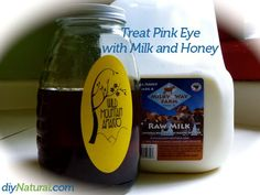 How I Cured Pink Eye With Milk and Honey – Page 10 : Within 12 hours of contracting pink eye, we eliminated the symptoms with the simple and natural solution revealed in this article.