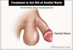 Treatment to Get Rid of HPV or Genital Warts http://www.wartalooza.com