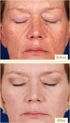 Glycolic Peel! Have dark spots? I can make them disappear!!!