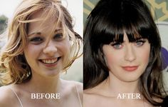 While still relatively young at only Zooey Deschanel plastic surgery rumors are all over the place. While the actress changes her looks often, there Extreme Plastic Surgery, Celebrity Plastic Surgery, Photoshop, Zooey Deschanel Hair, Botox Forehead, Botox Lips, Celebs Without Makeup, Botox Alternative, Celebrities Before And After